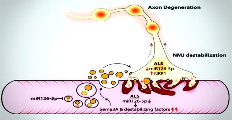 Un descubrimiento impresionante allana el camino para el tratamiento de la esclerosis lateral amiotrófica ALS.