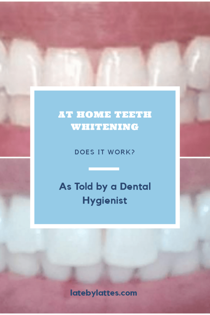 At Home Teeth Whitening: Does it Work?As Told by A Dental Hygienist