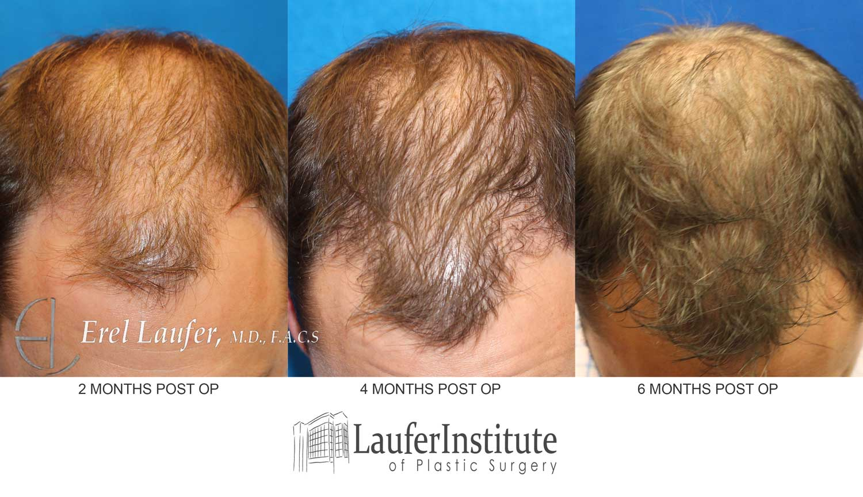 Months Hair Post 3 Transplant