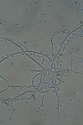 Fungus in enrichment of Parys mine sample 2015