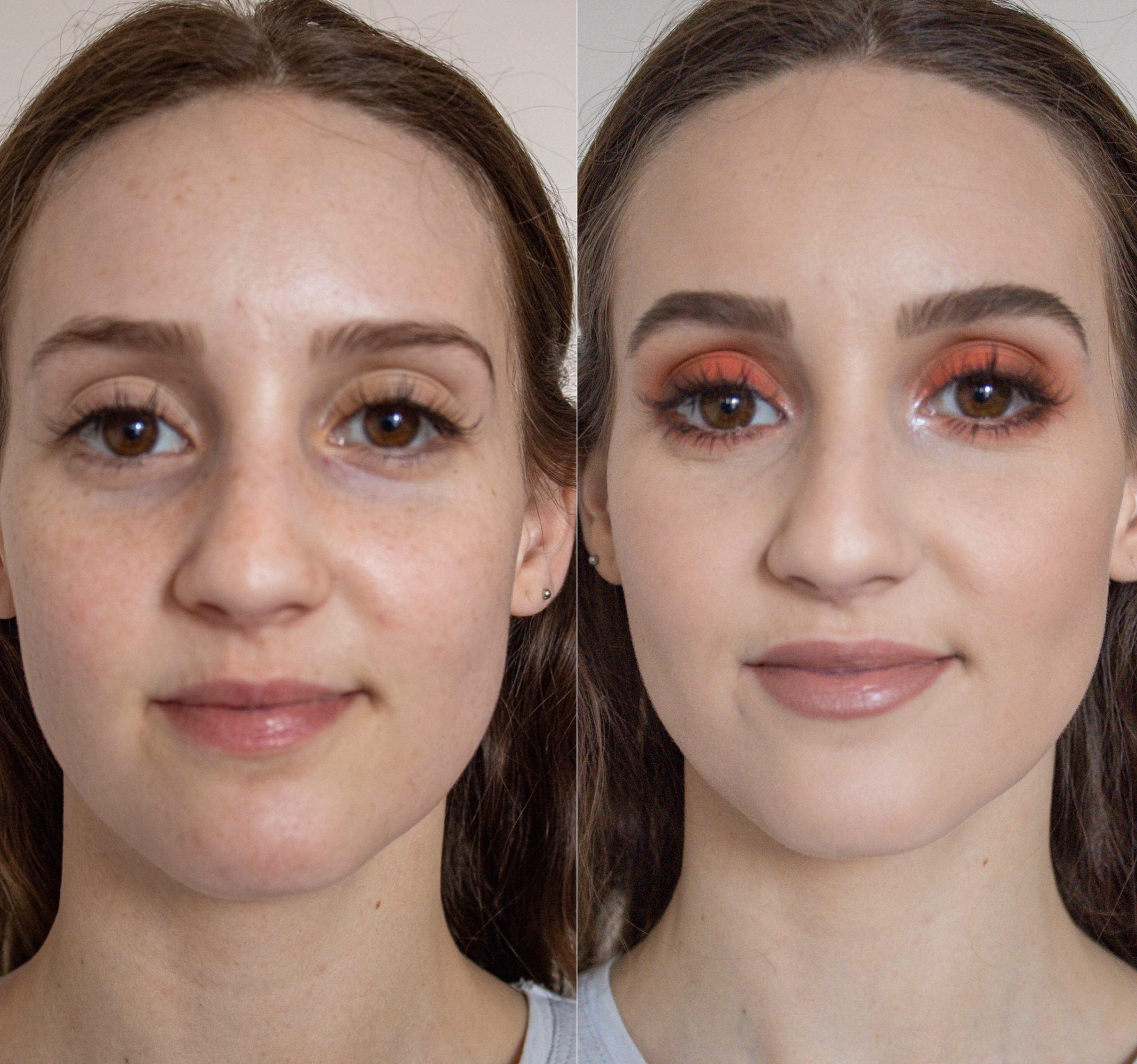 Foundation Coverage