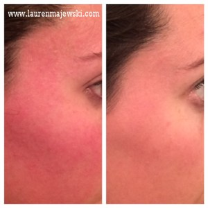 UR skin Before and After April 2014