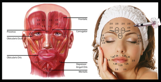 picture showing points on the face where Botox is injected