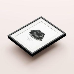 Custom Charcoal Ultrasound Print – One of a Kind