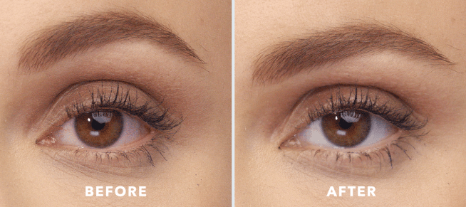 Lumify Eye Drops Review- before and after 2