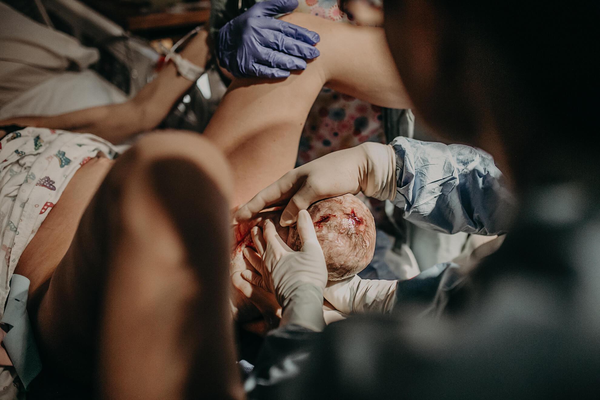 Parto vaginal con cabeza de bebé