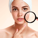 Saiba quais alimentos evitar ao combater a acne