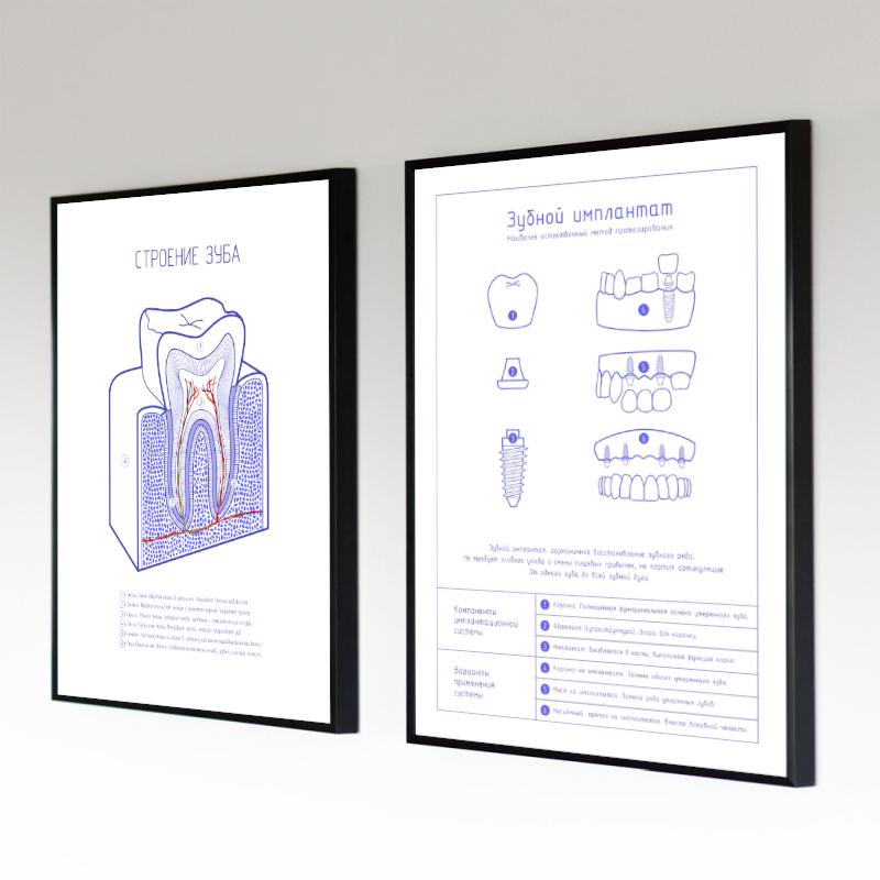 Зубной имплантат лайт и Анатомия зуба лайт