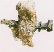 Posterior Calcaneal Spur