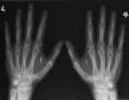 x-ray of chipped hands2.JPG