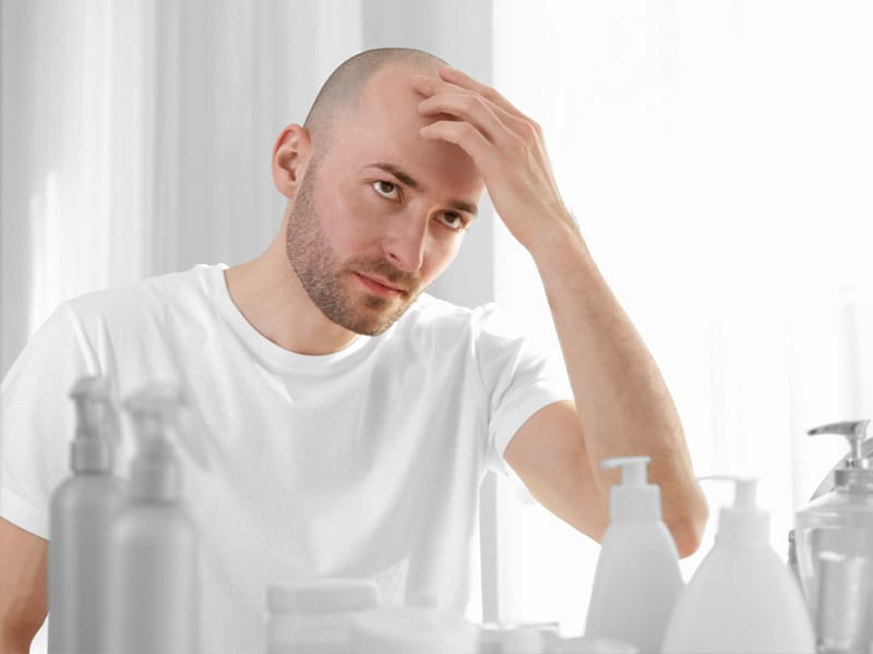 Losing Hair At 25 Male Will No Longer Be A Nightmare If You Know This!