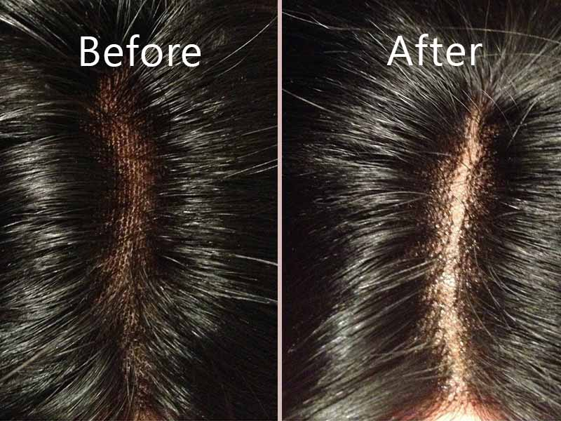 7 Secrets For Optimizing Bleaching Knots On Lace Closure Experience!