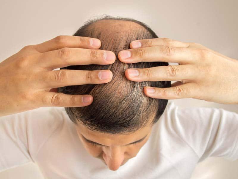 Male Pattern Baldness Cure: Is It Hopeful Or Hopeless?