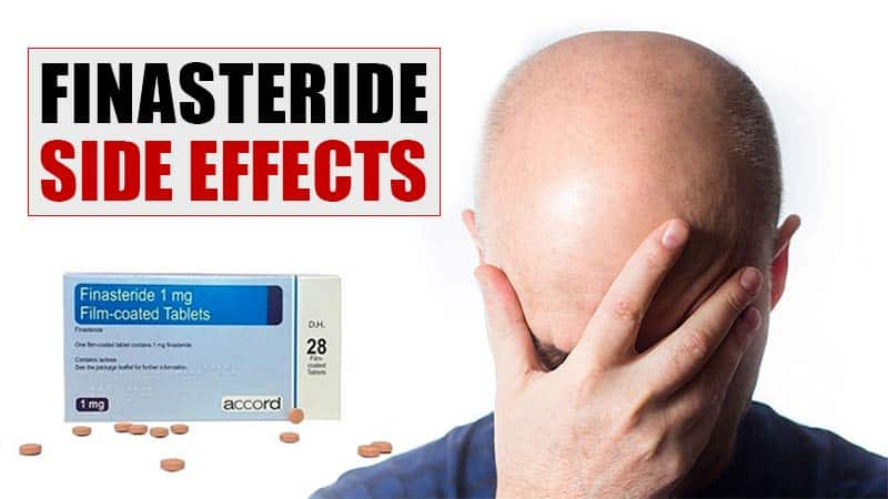 Worried About Finasteride Side Effects? Read This First!
