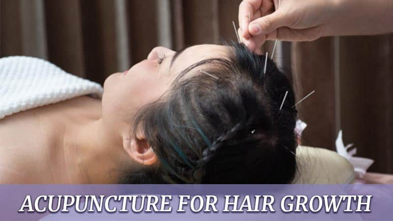 Is Acupuncture For Hair Growth A Viable Solution?