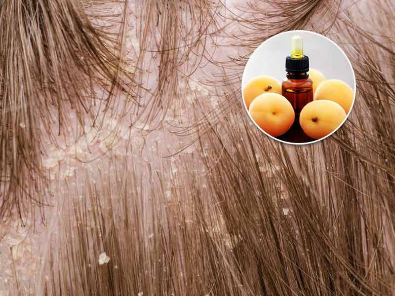 Is Apricot Oil Good For Hair? Things You Didn't Know About