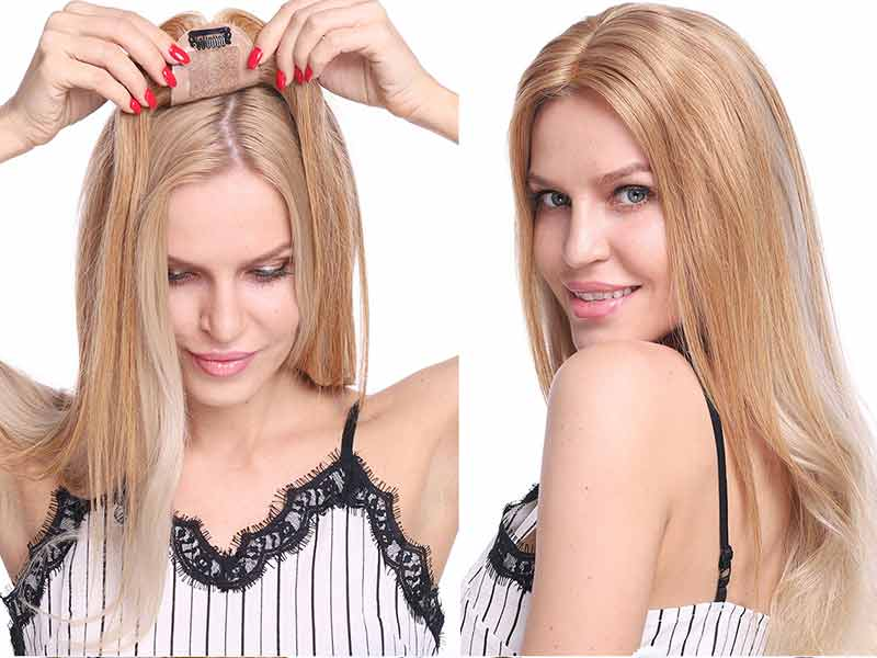 Struggling Hair Loss Front Of Head Female? The Easy Way Out!