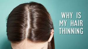 Why Is My Hair Thinning? The Non-Stop Journey To Find The Answer