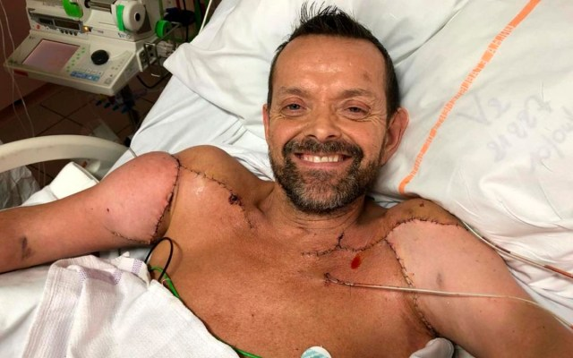 Hombre que recibió primer trasplante doble de brazos del mundo ya puede flexionar sus bíceps