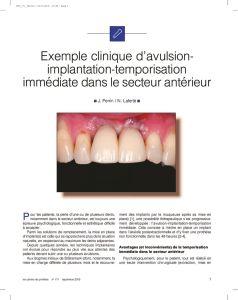 thumbnail of CDP_LDL_AVULSION
