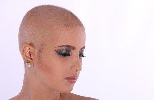 Alopécie chez la femme