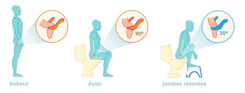 Bien se positionner aux toilettes pour aller à la selle rapidement et lutter contre la constipation