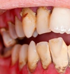 Meilleur détartrage dentaire parodontite