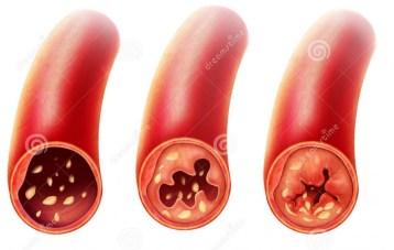 Arthéroscélorse-yoga-ions négatifs- prana