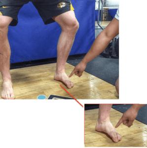 اختلال توازن القدم نتيجة اتجاه الركبة للخارج أكثر من اللازم