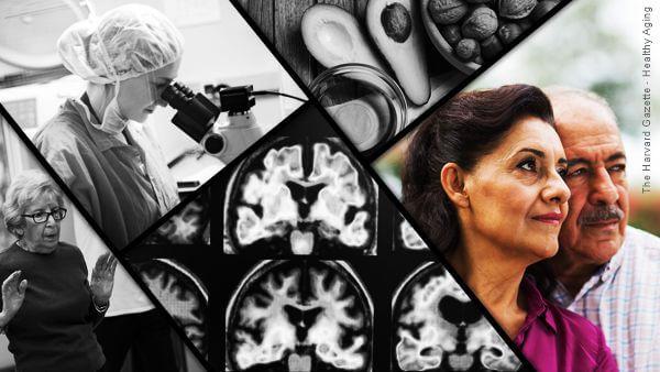 Montagem fotográfica com imagens de ressonâncias magnéticas casal de idosos, uma médica olhando um microscópio como ser feliz