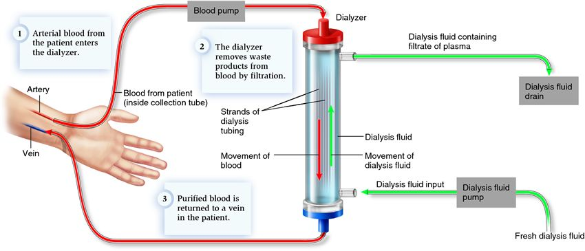 dilysis kidney excretion
