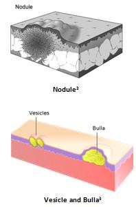 Image result for vesicles skin lesion