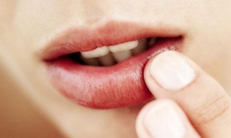 Как вылечить болячки на губеЛечение ребенка - детские ...