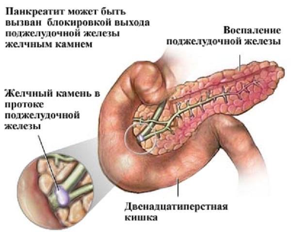 pancreatita varikoz programul varicose nu sunt recenzii