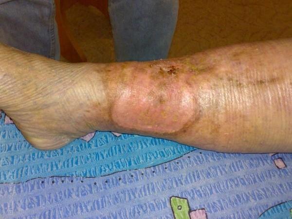 operațiunea de varicoză neinvazivă)