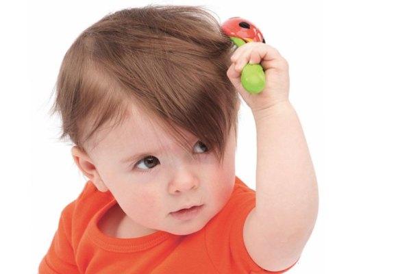 Корочки на голове у ребенка: желтые, себорейные, как ...