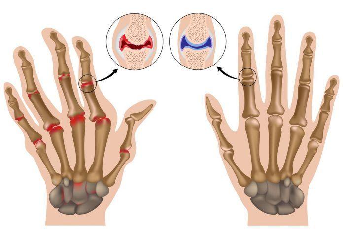 Что делать, если крутит суставы ног и рук: советы и причины. Боли в пальцах рук