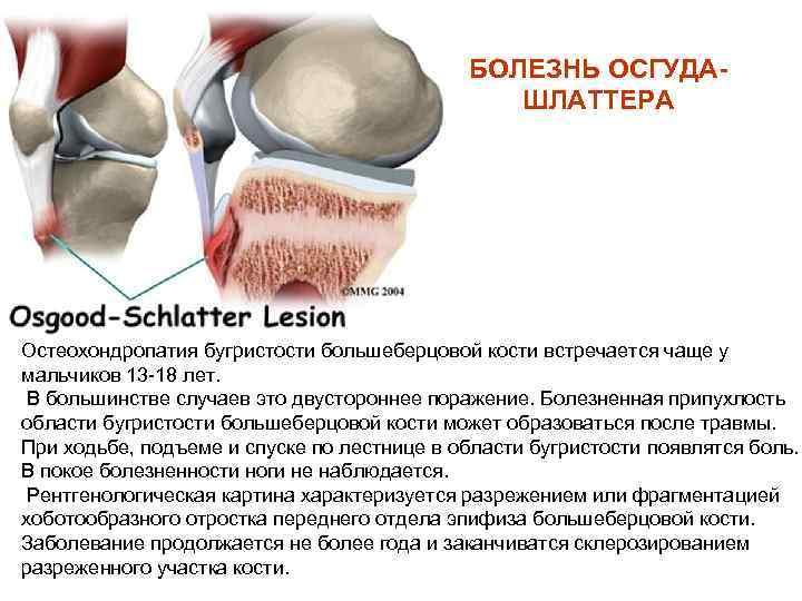 Болезнь ларсена юханссона остеохондропатия надколенной чашечки