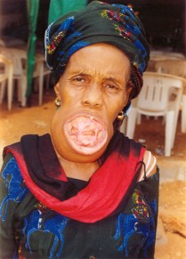 Maria Igwilo, before surgery