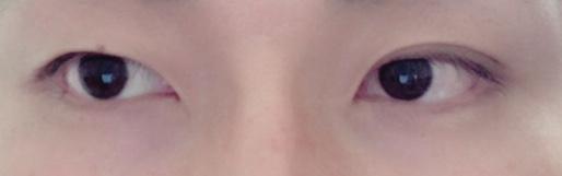 片目だけ二重になった