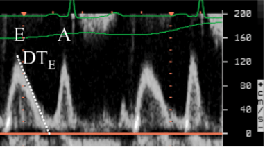 Doppler pulsé mitral: Onde E puis Onde A. Trait en pointillé = TDE