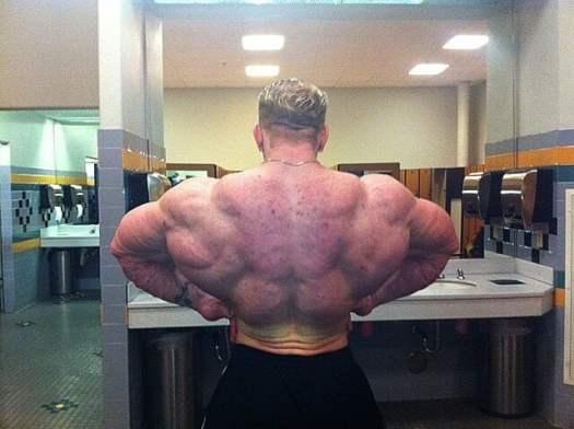 Dennis-Wolf-back-acne