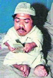 Gul Mohammed one of the shortest men in the world right now
