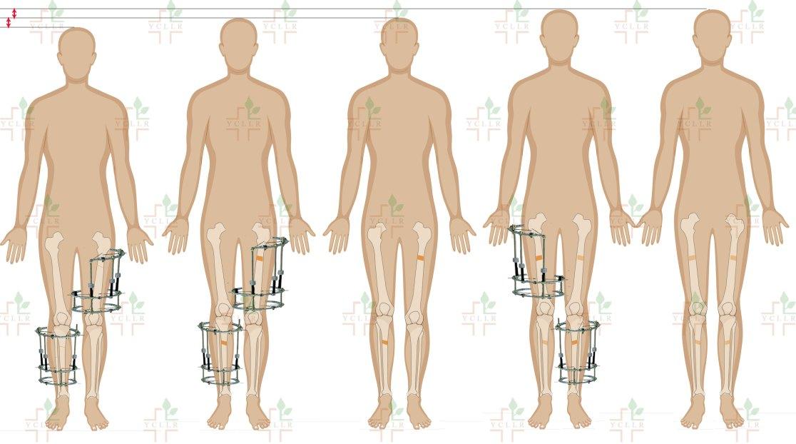 cross-lateral-tibia-femur-lengthening-CLTFL