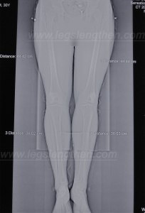 tibias-lengthening-over-the-nail-LON-ycllr-2