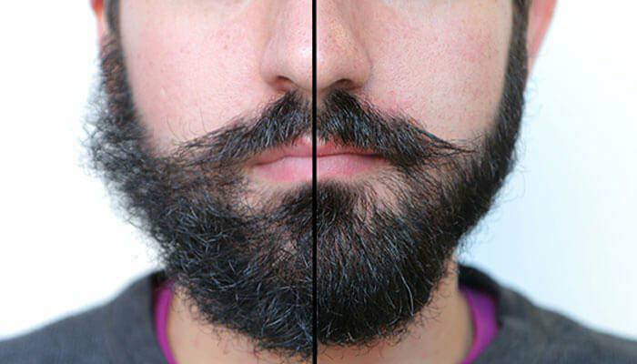 What is Beard Oil and Why Should You Use It?