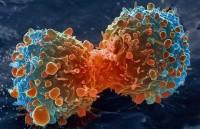 В Китай лекуват рак само за 3 минути