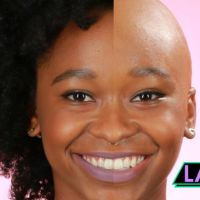 VIDEO : Women Go Bald For A Day