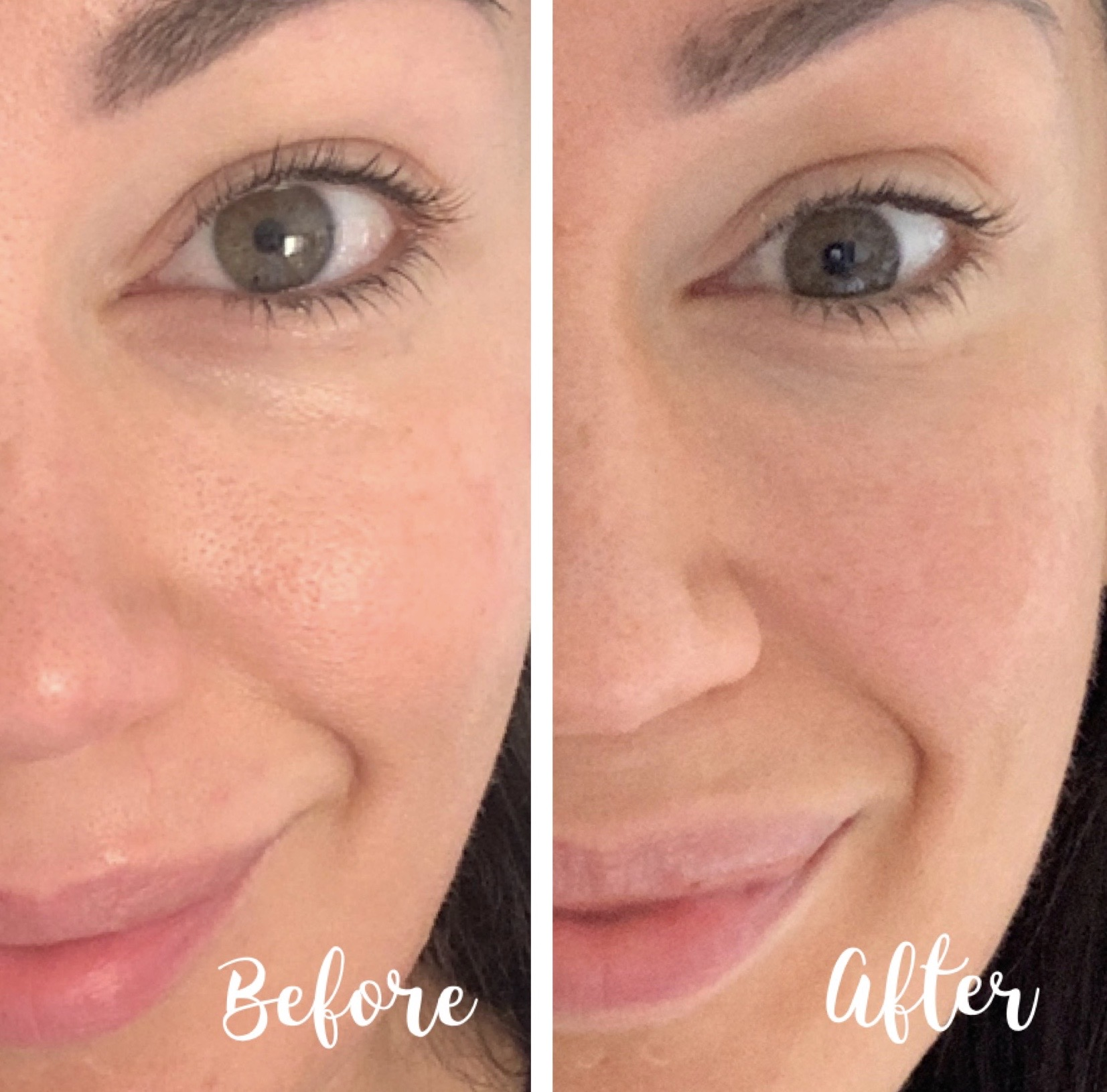 How I Improved My Skin In 28 Days With Olay Retinol24 And How I