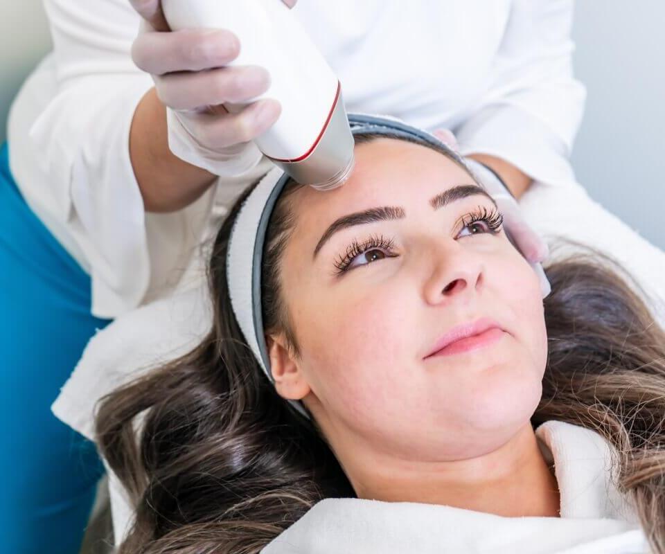 RF Microneedling Lemore Clinic